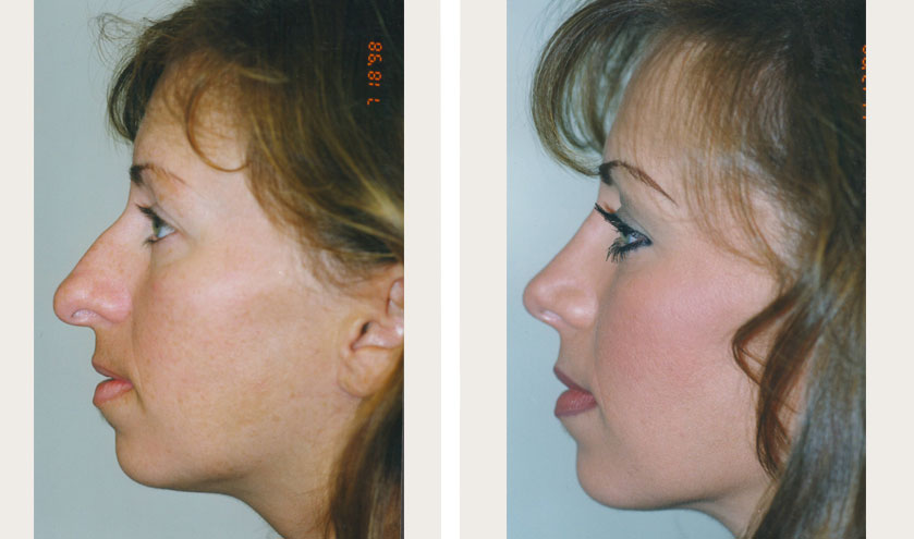 rhinoplasty nyc cost recovery reviews before after pics