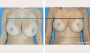 bodytite-breast-bna