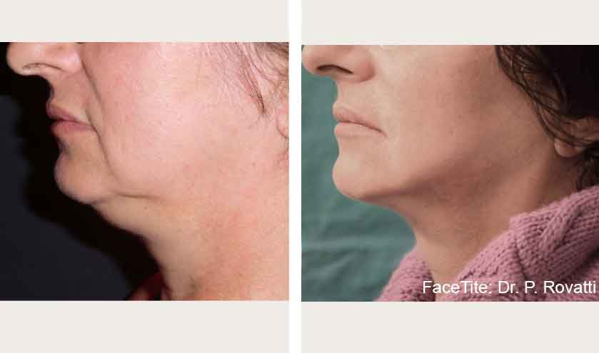 FaceTite NYC | Dr  Thomas Loeb