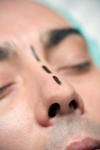 man nose job rhinoplasty