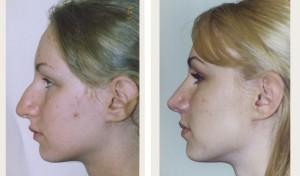 Rhinoplasty-26-bna