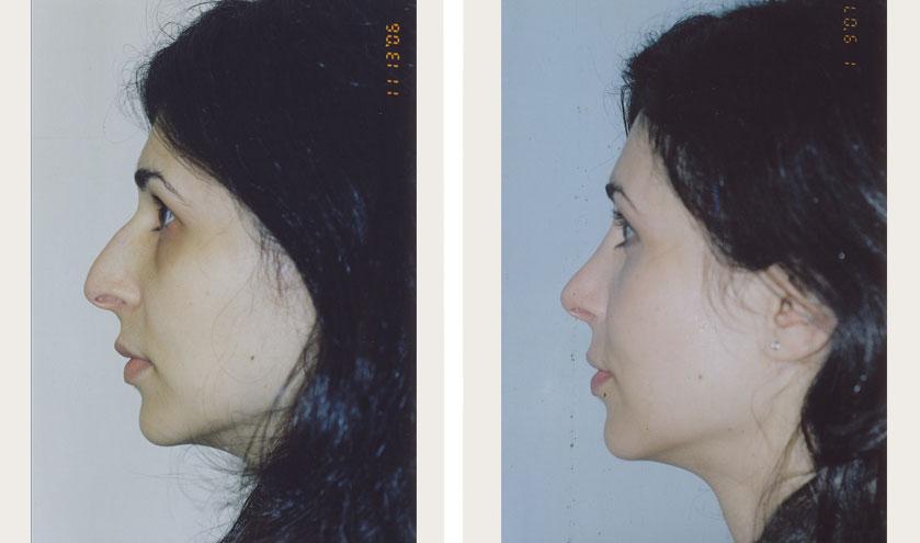Rhinoplasty-2a-bna