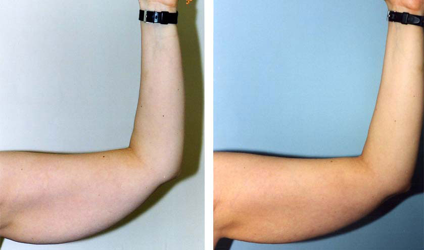 Arm Lift Plastic Surgery