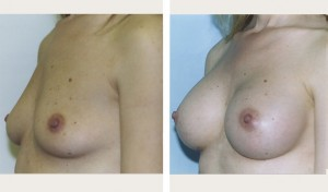 breast implants nyc before and after pictures