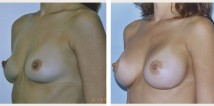 breast implant before and after photo