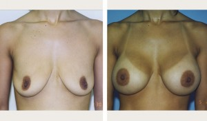 breast augmentation new york before & after pics