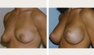 breast augmentation nyc before and after photo