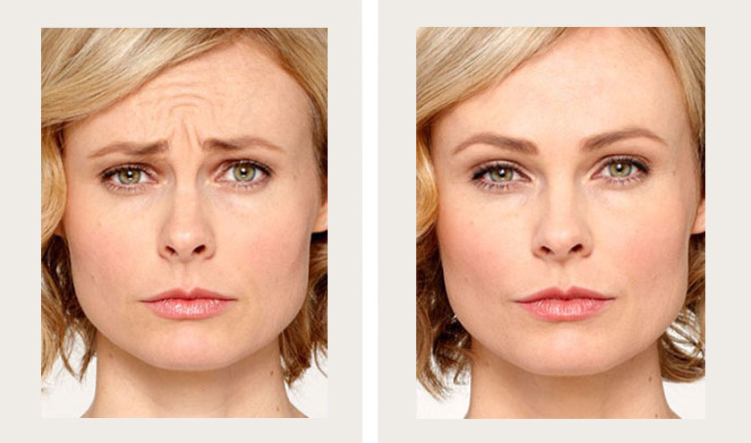 Botox Before and After | Before and After Botox Pictures