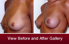 Image-Breast-Surgery-2