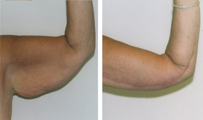 Scars From Upper Arm Lifts : Arm lift before and after brachioplasty