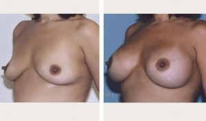breast enhancement before and after photos nyc