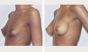 nyc breast augmentation photos before and after