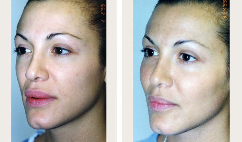 Cheek Augmentation Before & After Pictures - RealSelf