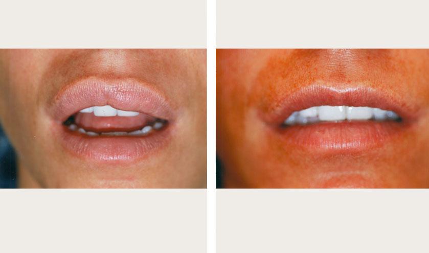 Face Lift Melbourne  Facial Rejuvenation