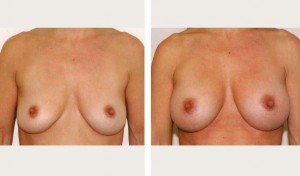 breast augmentation revision before and after nyc