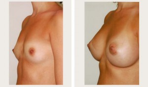 breast surgery before and after photo nyc