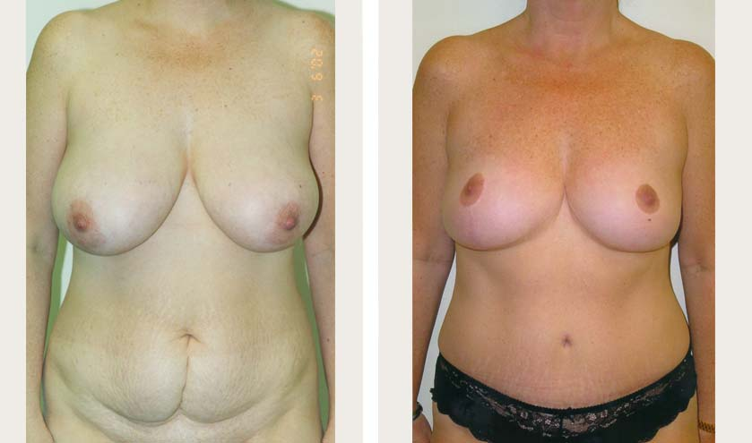 breast reduction and tummy tuck