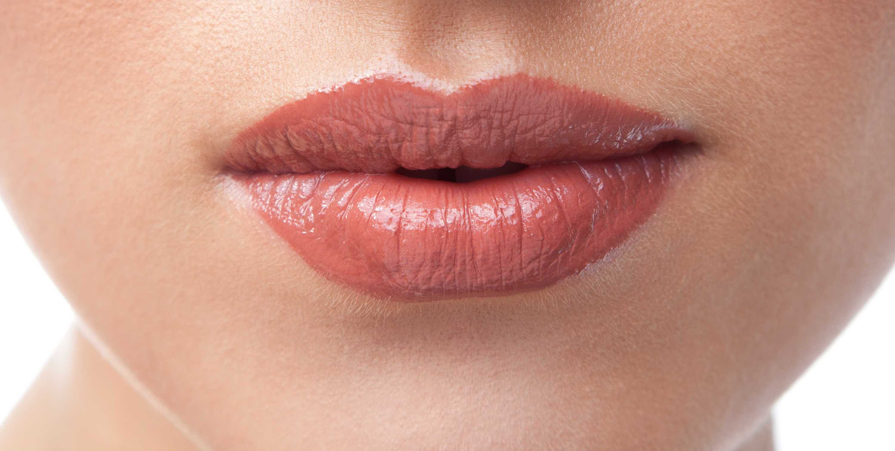 Beautiful Lip Augmentation with PermaLip