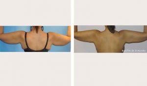 bodytite-arms-bna