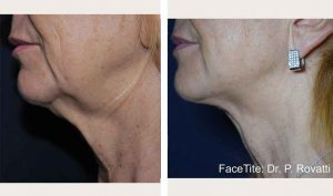 facetite-neck-bna1