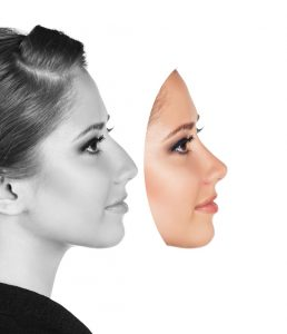which nose type do you have 6 different nose shapes