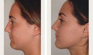 best website 942fe 7b4f5 Liposuction of the Neck