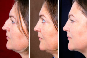 woman nose and double chin plastic surgery before and after