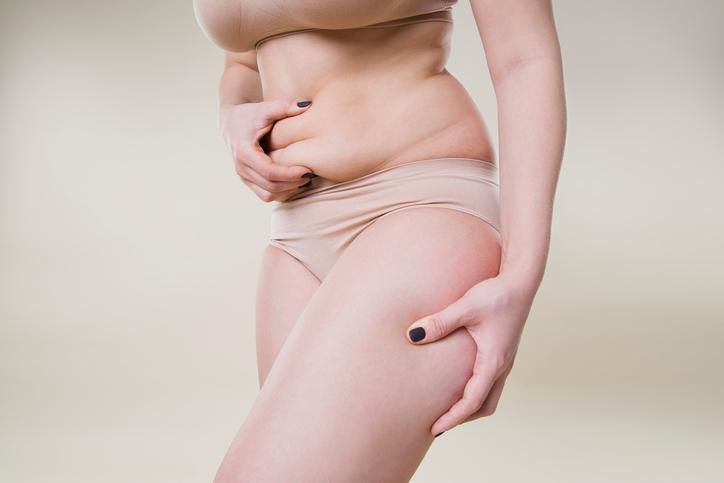 woman considering tummy tuck