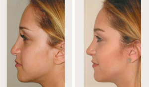 side view revision rhinoplasty