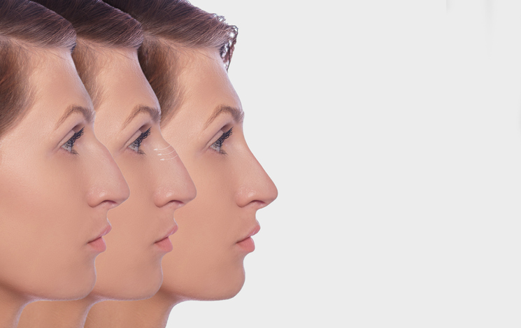 profile female before and after plastic surgery on her nose. Comparison ofwoman nose after plastic surgery