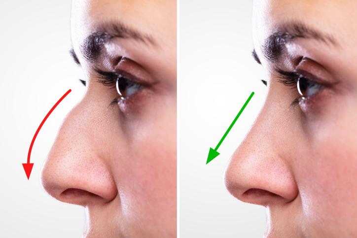 چگونه می توان بینی را با پرکننده های بینی کوچکتر نشان داد